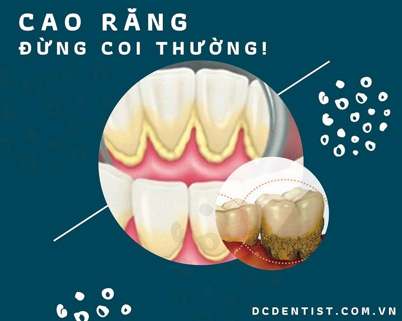 Lấy cao răng công nghệ siêu âm – Sạch mảng bám – Sáng nụ cười