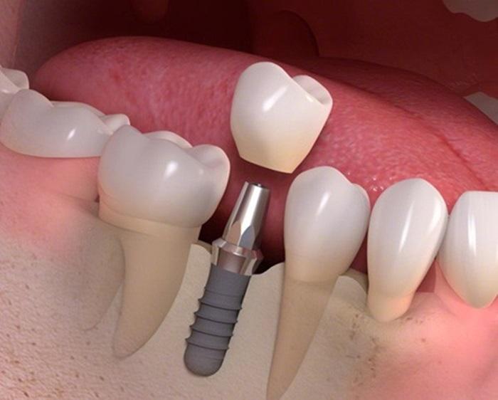 nhổ răng có đau không