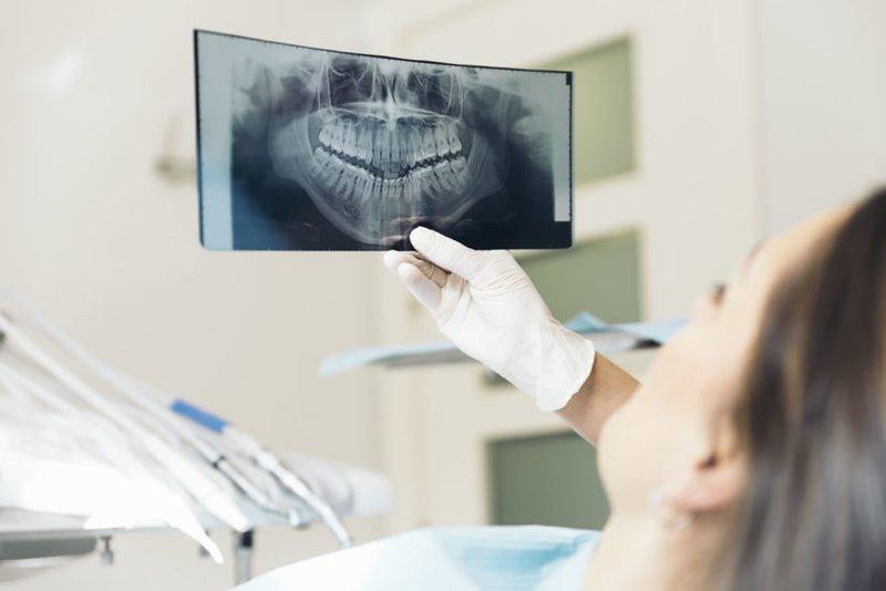 nhổ răng siêu âm là gì, nhổ răng siêu âm cao tần, nhổ răng siêu âm hà nội, nhổ răng bằng máy siêu âm tại hà nội, nhổ răng bằng siêu âm cao tần, nhổ răng sóng siêu âm, nhổ răng bằng siêu âm, nhổ răng bằng máy siêu âm, nhổ răng bằng sóng siêu âm, nhổ răng khôn bằng sóng siêu âm cao tần, nhổ răng công nghệ sóng siêu âm, nhổ răng bằng máy siêu âm là gì, nhổ răng hàm bằng máy siêu âm, nhổ răng khôn siêu âm, công nghệ nhổ răng siêu âm, nhổ răng phương pháp siêu âm, nhổ răng khôn sóng siêu âm, nhổ răng số 8 siêu âm, nhổ răng số 8 bằng máy siêu âm, nhổ răng số 8 bằng sóng siêu âm