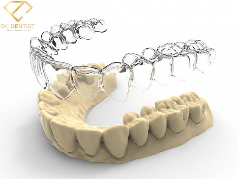 niềng răng không mắc cài là gì, niềng răng không mắc cài giá bao nhiêu tiền, niềng răng không mắc cài giá bao nhiêu, niềng răng không mắc cài 1 hàm giá bao nhiêu, niềng răng không mắc cài bao nhiêu, niềng răng không mắc cài giá rẻ, niềng răng không mắc cài giá, niềng răng không mắc cài bao nhiêu tiền, niềng răng không mắc cài hết bao nhiêu, niềng răng không mắc cài trả góp, niềng răng không mắc cài có đau không, niềng răng không mắc cài có hiệu quả không, niềng răng trong suốt không mắc cài, phương pháp niềng răng không mắc cài, có nên niềng răng không mắc cài, niềng răng không mắc cài mất bao lâu, nhược điểm của niềng răng không mắc cài, niềng răng không cần mắc cài, cách niềng răng không mắc cài, niềng răng không mắc cài ở đâu, niềng răng không đeo mắc cài, niềng răng không mắc cài tại hà nội, hình ảnh niềng răng không mắc cài, các loại niềng răng không mắc cài, niềng răng thẩm mỹ không mắc cài, niềng răng không mắc cài tại nhà, niềng răng không mắc cài review, niềng răng thưa không mắc cài