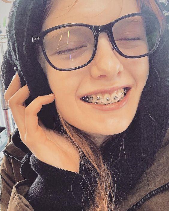 niềng răng mắc cài là gì, các loại niềng răng mắc cài, quy trình niềng răng mắc cài, ưu nhược điểm niềng răng mắc cài