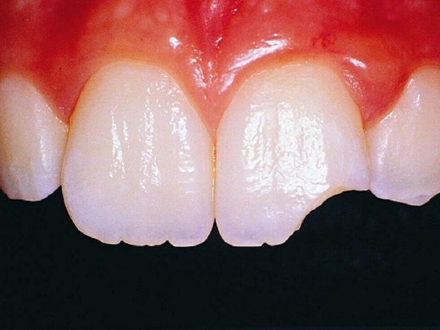 Răng cửa bị mẻ phải làm sao? Nên trám răng hay bọc răng sứ?