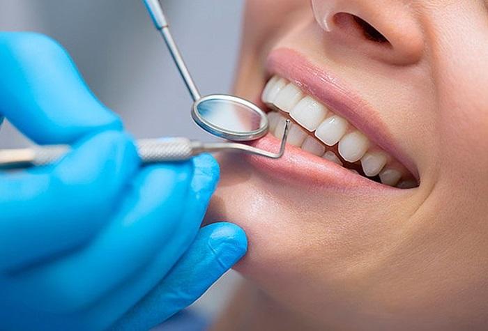 Công nghệ tẩy trắng răng Ultra Perfect Whitening, tẩy trắng răng công nghệ Ultra Perfect Whitening