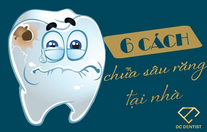 TOP 6 cách chữa răng sâu tại nhà Đơn giản – Tiết kiệm – Hiệu quả