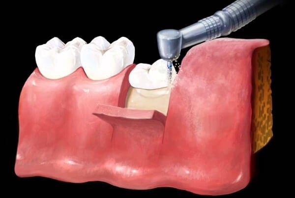 dấu hiệu mọc răng khôn hàm dưới, dấu hiệu mọc răng khôn lệch, dấu hiệu mọc răng khôn ở bé, các dấu hiệu mọc răng khôn, dấu hiệu sắp mọc răng khôn, dấu hiệu khi mọc răng khôn, dấu hiệu răng khôn mọc thẳng, các dấu hiệu của mọc răng khôn, dấu hiệu răng khôn mọc ngang, biểu hiện của mọc răng khôn, biểu hiện mọc răng khôn, biểu hiện khi mọc răng khôn, mọc răng khôn biểu hiện