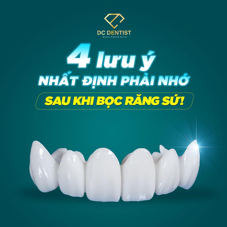 những điều cần lưu ý sau khi bọc răng sứ, những lưu ý sau khi bọc răng
