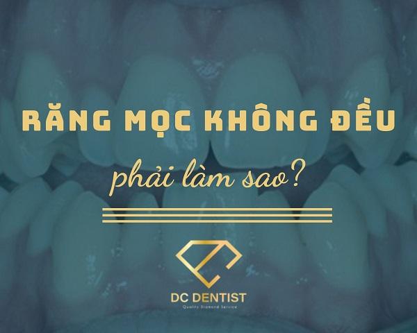 Răng mọc không đều phải làm sao, tại sao răng mọc không đều, hình ảnh răng mọc không đều, bọc răng sứ cho răng mọc không đều, niềng răng mọc không đều, nên niềng răng hay bọc răng sứ cho răng mọc không đều
