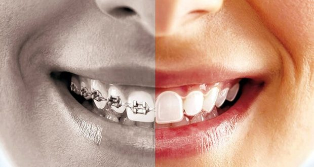 răng sâu có niềng được không, trám răng sâu có niềng được không