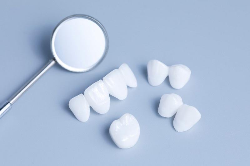 Bọc răng sứ Invy Ultra 3P tại Nha khoa DC Dentist- Răng đẹp chuẩn đường cười – Ưu đãi lớn