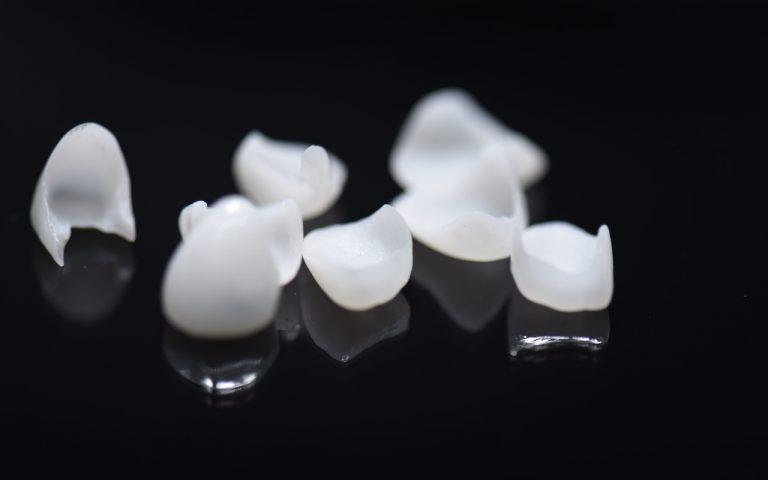 miếng dán sứ veneer, dán phủ sứ veneer, dán sứ veneer siêu mỏng, công nghệ dán sứ veneer, phương pháp dán sứ veneer, mặt dán sứ veneer là gì, dán răng sứ veneer là gì