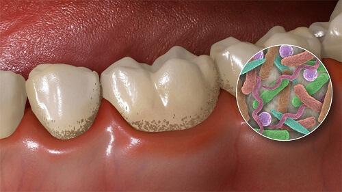 lấy cao răng siêu âm là gì, lấy cao răng siêu âm ở hà nội, lấy cao răng sóng siêu âm, lấy cao răng bằng siêu âm, giá lấy cao răng siêu âm, lấy cao răng siêu âm, giá lấy cao răng siêu âm