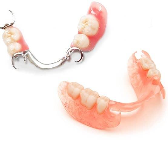 răng giả tháo lắp là gì, hàm răng giả tháo lắp là gì, cách lắp răng giả, cách tháo lắp răng giả, răng giả tháo lắp bằng sứ, răng giả tháo lắp nhựa dẻo, răng giả tháo lắp nhựa cứng, nên làm răng giả tháo lắp hay cố định, trồng răng giả bằng hàm tháo lắp, trồng răng giả tháo lắp, trồng răng tháo lắp mất bao lâu, làm răng tháo lắp mất bao lâu, răng giả tháo lắp bán phần, răng hàm giả tháo lắp, răng giả tháo lắp toàn hàm, răng giả tháo lắp kim loại, răng giả tháo lắp loại nào tốt, làm răng giả tháo lắp, răng giả tháo lắp như thế nào, làm răng giả nguyên hàm tháo lắp