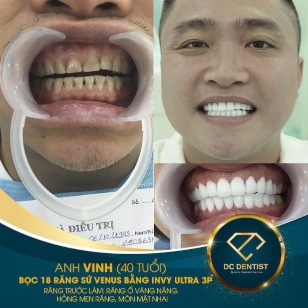 Hình ảnh khách hàng Vinh bọc sứ Venus thành công tại nha khoa DC Dentist