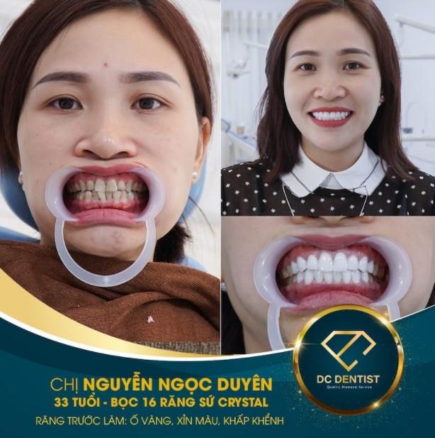 Hình ảnh khách hàng Nguyễn Ngọc Duyên bọc sứ Crystal thành công tại nha khoa DC Dentist