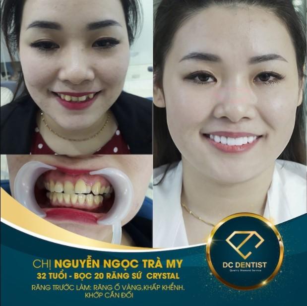 Hình ảnh khách hàng Nguyễn Ngọc Trà My bọc sứ Crystal thành công tại nha khoa DC Dentist
