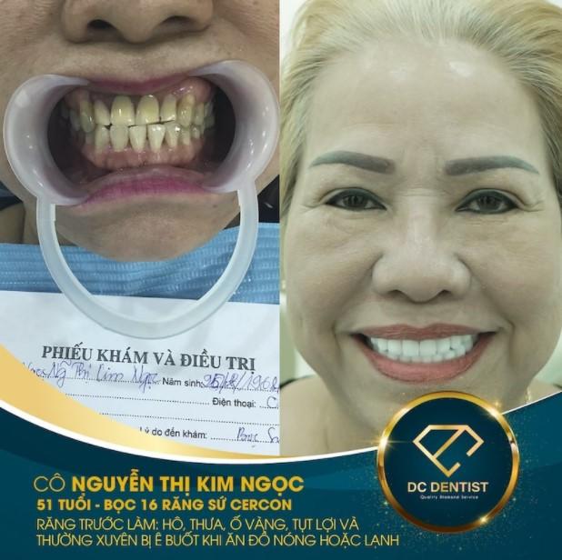 Hình ảnh khách hàng Nguyễn Thị Kim Ngọc bọc sứ Cercon thành công tại nha khoa DC Dentist
