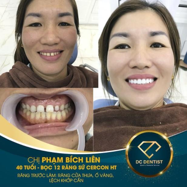 hình ảnh khách hàng Phạm Bích Liên bọc sứ Cercon HT thành công tại nha khoa DC Dentist