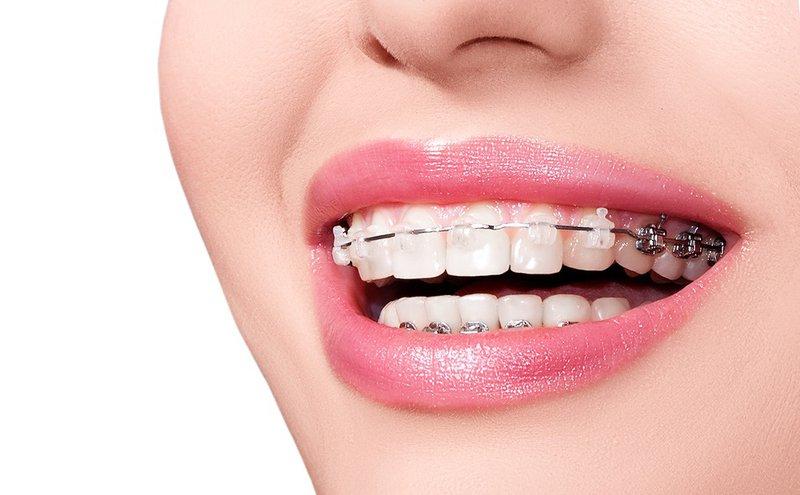 Xem tướng răng hạt lựu, tướng răng hạt lựu, răng hạt lựu là như thế nào, con gái răng hạt lựu, răng hạt lựu, hàm răng hạt lựu, Hình ảnh răng hạt lựu