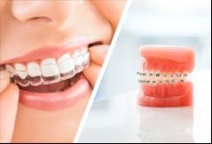 niềng răng thẩm mỹ tại nha khoa DC Dentist