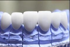 Bọc răng sứ thẩm mỹ tại nha khoa DC Dentist