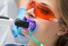 tẩy trắng răng ultra perfect whitening tại nha khoa DC Dentist
