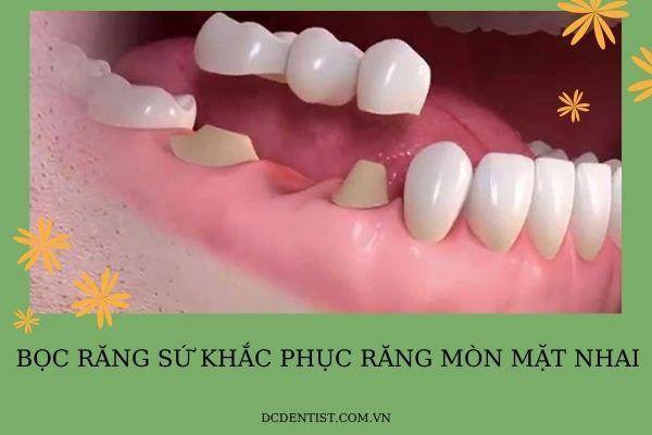 cách chữa răng mòn mặt nhai, răng mòn mặt nhai, mòn răng mặt nhai, chữa răng mòn mặt nhai, trám răng mòn mặt nhai, mòn mặt nhai răng hàm, điều trị răng mòn mặt nhai, răng bị mòn mặt nhai, răng hàm bị mòn mặt nhai, mòn răng quá mức, mặt nhai của răng bị mòn,