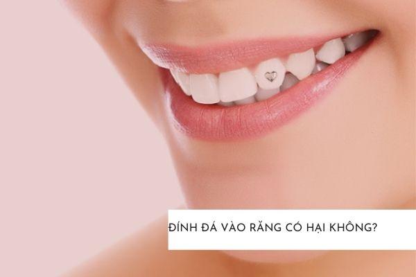 đính đá vào răng có hại không, răng đính đá có hại không, khoan răng đính đá có hại không, đính đá lên răng có hại không, răng đính đá có hại không, khoan răng đính đá có hại không, đính đá lên răng có hại không, đá đính răng có tốt không, đính đá ở răng có tốt không, đính đá vào răng có đau ko, đính đá vào răng có nguy hiểm không, đính đá lên răng có an toàn không