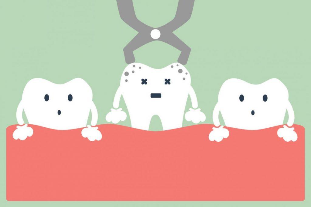 làm cách nào để cầm máu sau khi nhổ răng, cầm máu sau khi nhổ răng, cách cầm máu sau khi nhổ răng khôn, cách cầm máu sau khi nhổ răng hàm, cách cầm máu sau khi nhổ răng cấm, cách cầm máu sau khi nhổ răng số 8, cách cầm máu nhanh sau khi nhổ răng, làm cách nào để cầm máu sau khi nhổ răng, cầm máu sau khi nhổ răng khôn, cầm máu sau khi nhổ răng hàm, cầm máu sau khi nhổ răng, mẹo cầm máu sau khi nhổ răng, cách cầm máu sau khi nhổ răng, thuốc cầm máu sau khi nhổ răng, làm sao cầm máu sau khi nhổ răng