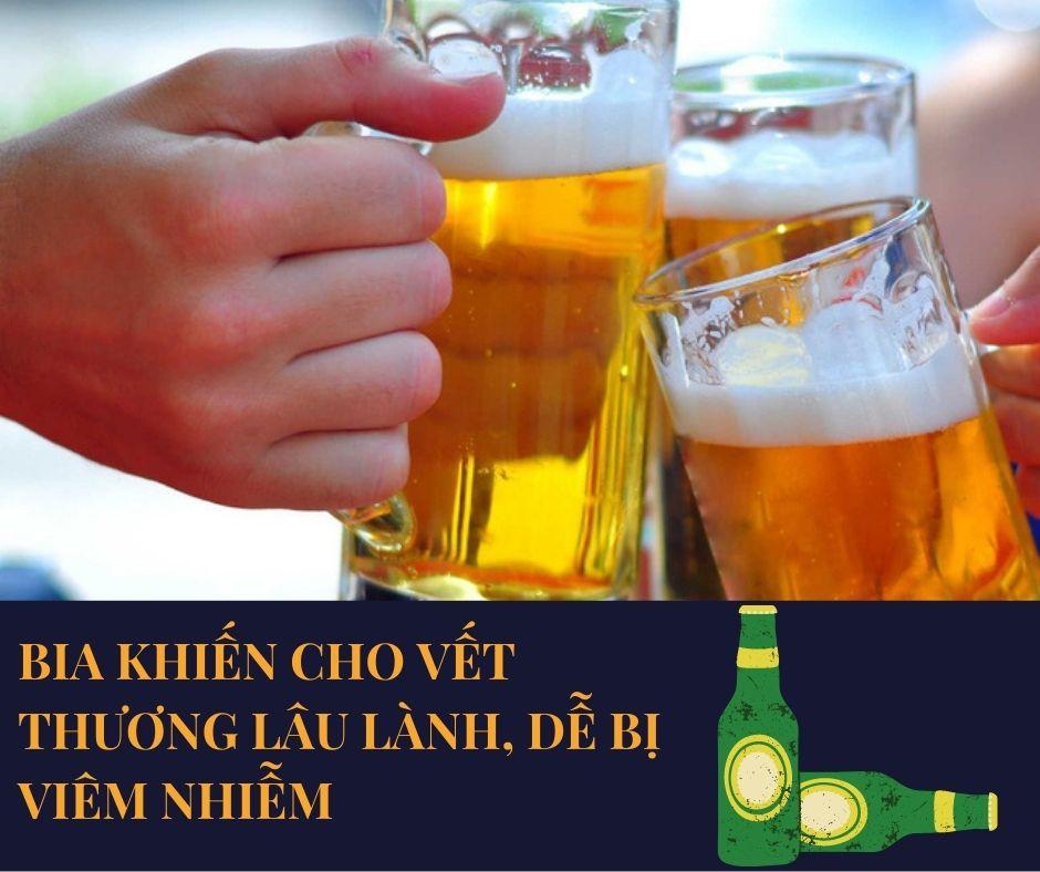mới nhổ răng uống bia được không, nhổ răng uống bia, nhổ răng uống bia được không, nhổ răng có uống bia được không, mới nhổ răng uống bia được không, nhổ răng khôn uống bia được không, nhổ răng xong uống bia được không, nhổ răng có được uống bia, mới nhổ răng có uống bia được không, nhổ răng khôn có được uống bia không, nhổ răng xong có được uống bia không, nhổ răng xong có được uống bia