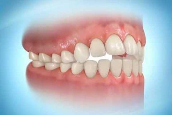 phương pháp điều trị khớp cắn hở, khớp cắn hở, khớp cắn hở là gì, khớp cắn hở nhẹ, Tác hại của khớp cắn hở, khớp cắn sâu hở lợi, chỉnh khớp cắn hở, răng khớp cắn hở, niềng răng khớp cắn hở, điều chỉnh khớp cắn hở, điều trị khớp cắn hở, niềng răng khớp cắn hở mất bao lâu, phẫu thuật khớp cắn hở
