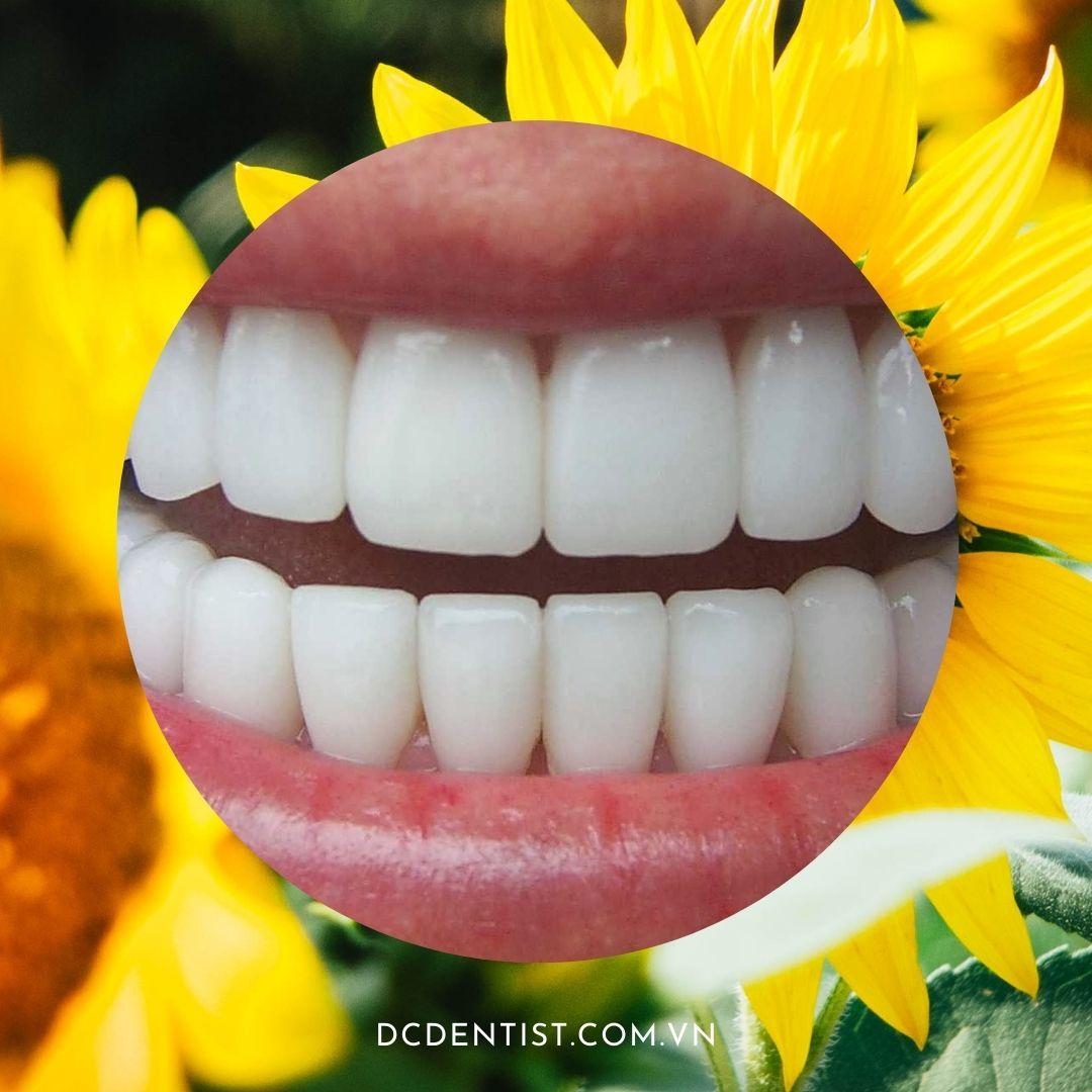 xem tướng răng ở người, xem tướng răng, tướng răng người, tướng răng, xem tướng răng ở người, tướng răng ở người