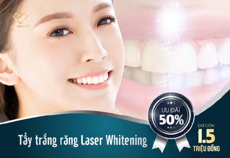 Ưu đãi tẩy trắng răng công nghệ Laser Whitening trọn gói chỉ 1.5 triệu đồng
