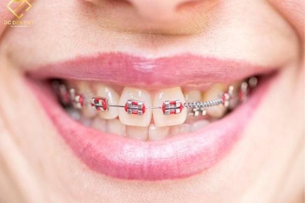 bảng giá chi phí niềng răng, chi phí niềng răng, khuyến mãi niềng răng, bảng giá niềng răng, giá niềng răng, bang gia nieng rang, nẹp răng mất bao nhiêu tiền, niềng răng hết bao nhiêu tiền, bảng giá niềng răng hô, niềng răng giảm giá, báo giá niềng răng, giá các loại niềng răng, giảm giá niềng răng, gia nieng rang, niềng răng bảng giá, niềng răng khuyến mãi, niềng răng cần bao nhiêu tiền, niềng răng bao nhiêu tiền, niềng răng mất bao tiền, chi phí niềng răng khấp khểnh, niềng răng giá, bảng giá chi phí niềng răng