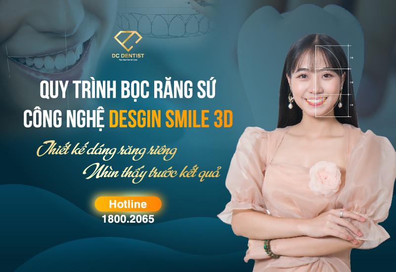 Đánh giá công nghệ bọc răng sứ Smile Design 3D tại Nha khoa Quốc tế DC Dentist