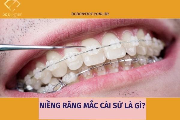 chi phí niềng răng mắc cài sứ giá bao nhiêu niềng răng mắc cài sứ, hình ảnh niềng răng mắc cài sứ, quy trình niềng răng mắc cài sứ, có nên niềng răng mắc cài sứ không, niềng răng mắc cài sứ bao nhiêu, niềng răng mắc cài sứ giá bao nhiêu, niềng răng mắc cài sứ là gì, ưu nhược điểm của niềng răng mắc cài sứ, niềng răng mắc cài sứ ở đâu tốt, giá niềng răng mắc cài sứ, niềng răng mắc cài sứ, niềng răng mắc cài sứ giá, chi phí niềng răng mắc cài sứ, mắc cài tự buộc giá bao nhiêu, niềng răng bằng mắc cài sứ giá bao nhiêu, niềng răng mắc cài sứ mất bao lâu