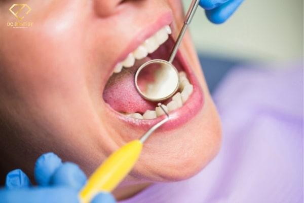 lấy cao răng giá bao nhiêu tiền, lấy cao răng giá bao nhiêu, lấy cao răng giá khoảng bao nhiêu, lấy cao răng có giá bao nhiêu, lấy cao răng bao nhiêu tiền, lấy cao răng tốn bao nhiêu tiền, lấy cao răng khoảng bao nhiêu tiền, chi phí lấy cao răng, chi phí khi lấy cao răng, chi phí 1 lần lấy cao răng, chi phí cho 1 lần lấy cao răng, bảng giá lấy cao răng, bảng giá dịch vụ lấy cao răng
