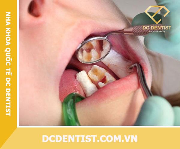 Bảng giá nha khoa 2020 | Lấy tủy răng sâu giá bao nhiêu tiền hiện nay?