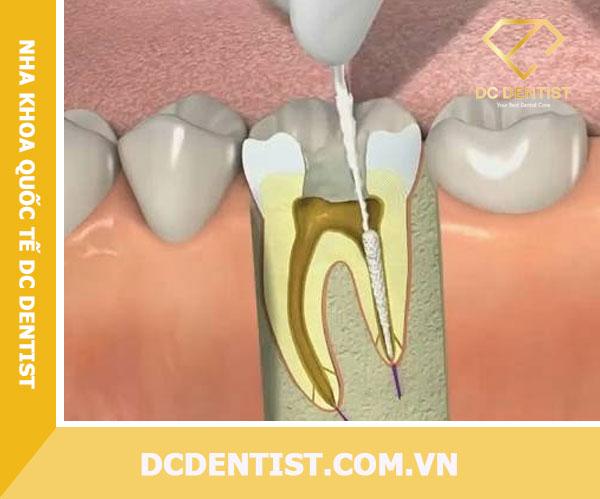 lấy tủy răng sâu giá bao nhiêu tiền, lấy tủy răng sâu giá bao nhiêu, giá lấy tủy răng sâu, chữa tủy răng sâu giá bao nhiêu, chữa tủy răng sâu giá bao nhiêu tiền, chi phí lấy tủy răng sâu, chi phí lấy tủy răng sâu bao nhiêu tiền, Quy trình lấy tủy răng, cách lấy tủy răng sâu