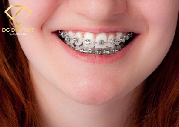Thế nào là niềng răng mắc cài kim loại chuẩn? Niềng răng mắc cài kim loại tại Nha khoa Quốc tế DC Dentist