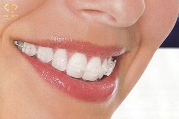Chi phí niềng răng mắc cài pha lê giá bao nhiêu tiền hiện nay