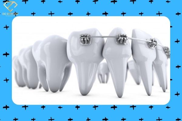 Niềng răng mắc cài tự buộc giá bao nhiêu? Có nên niềng răng mắc cài tự buộc không?
