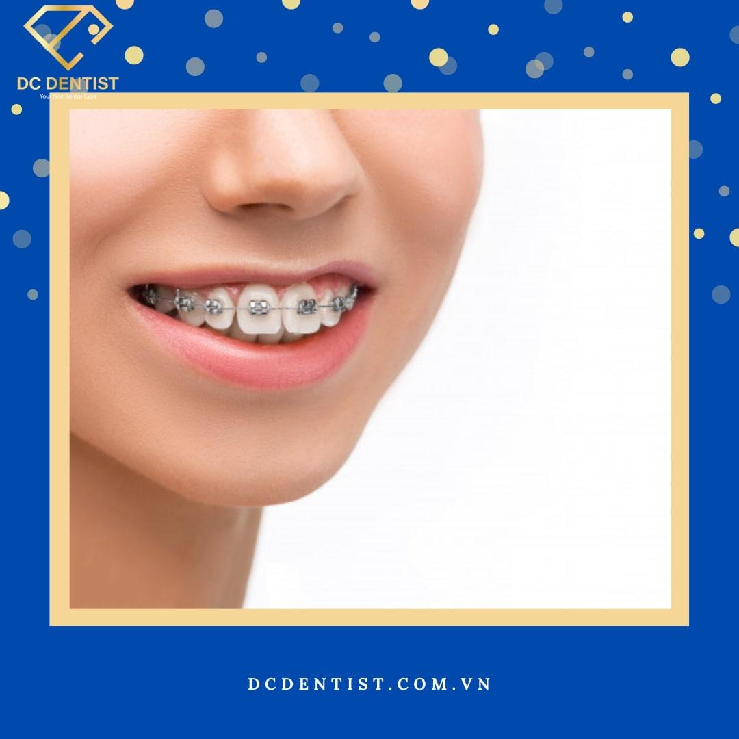 Tìm hiểu phương pháp niềng răng mắc cài kim loại chuẩn nhất hiện nay