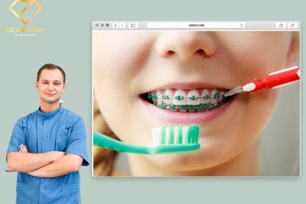 Sau khi niềng răng nên làm gì? Những lưu ý trong sinh hoạt cho người niềng răng xong