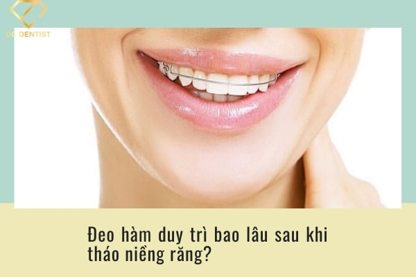 Sau khi niềng răng phải đeo hàm duy trì bao lâu để đảm bảo hiệu quả?