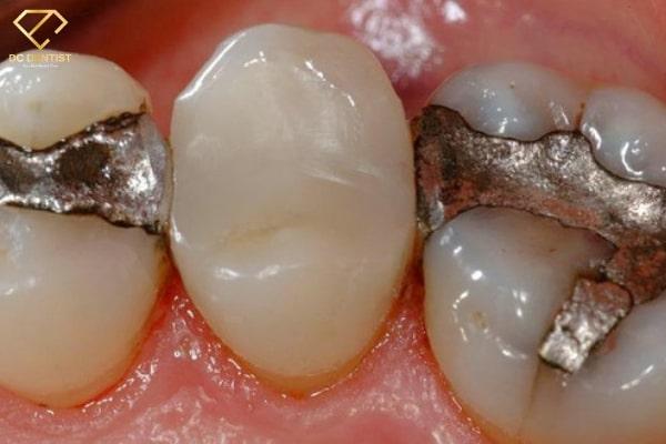 trám răng giá bao nhiêu tiền 1 cái, giá trám răng, hàn răng giá bao nhiêu, giá trám răng, trám răng thẩm mỹ bao nhiêu tiền, chi phí trám răng, giá trám răng thẩm mỹ, trám răng bao nhiêu tiền 1 cái, trám răng bao nhiêu 1 cái, trám răng bao nhiêu tiền, trám răng tốn bao nhiêu tiền, trám răng khoảng bao nhiêu tiền, trám răng bao nhiêu tiền một cái, trám răng chi phí bao nhiêu, trám răng mất bao nhiêu tiền, trám răng hết bao nhiêu, giá tiền trám răng, trám răng thẩm mỹ giá bao nhiêu, hàn răng hết bao nhiêu tiền, bảng giá trám răng, trám 1 cái răng bao nhiêu tiền, trám răng thẩm mỹ giá, trám răng hết bao nhiêu tiền