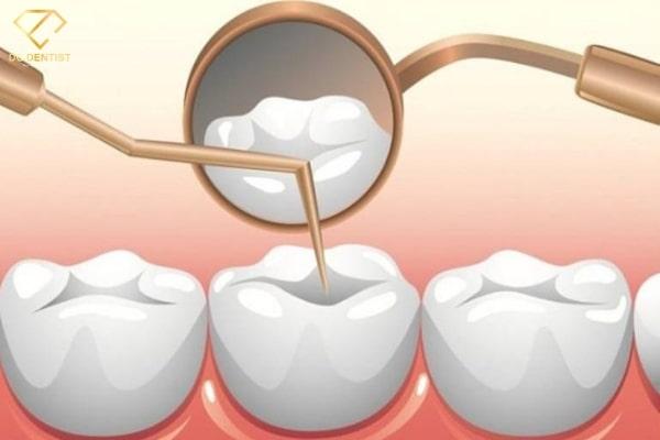 Chuyên gia nha khoa tư vấn | Trám răng giá bao nhiêu tiền 1 cái?