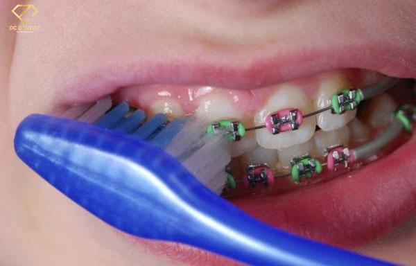 cách đánh răng khi đeo niềng răng, đánh răng khi niềng răng, cách đánh răng khi niềng răng, đánh răng đúng cách khi niềng răng, đánh răng sau khi niềng răng, hướng dẫn đánh răng sau khi niềng răng