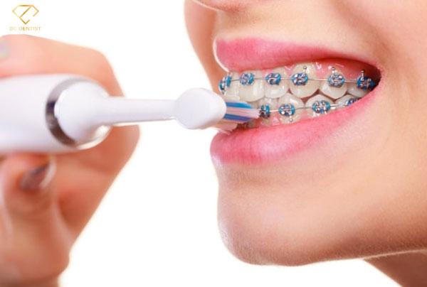 Chuyên gia nha khoa hướng dẫn cách đánh răng khi đeo niềng răng