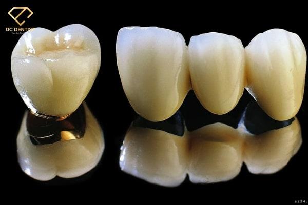 răng sứ titan bao nhiêu tiền, trồng răng sứ titan giá rẻ, bọc răng sứ titan giá bao nhiêu, giá răng sứ titan, trồng răng sứ titan giá bao nhiêu, răng sứ titan giá, răng sứ titan giá bao nhiêu, giá răng sứ kim loại titan, làm răng sứ titan