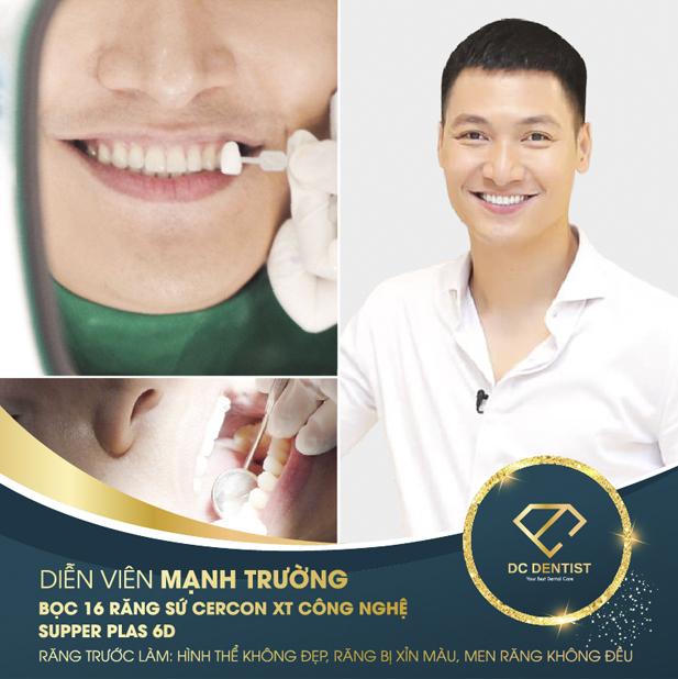 hình ảnh diễn viên Mạnh Trường bọc sứ Cercon XT thành công tại nha khoa DC Dentist